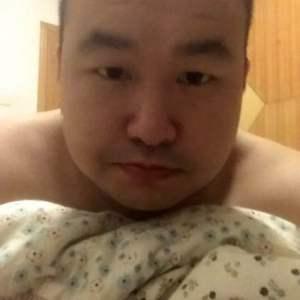 哟西花姑娘-植发术后第15天图片