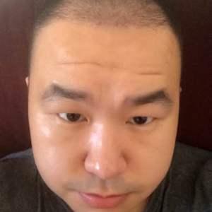 哟西花姑娘-植发术后第55天图片