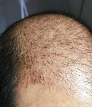 久了就旧了-植发术后第30天图片