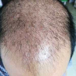 久了就旧了-植发术后第40天图片