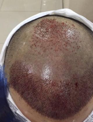 三月的鬼雨-植发术后当天图片