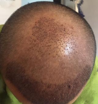 三月的鬼雨-植发术后第3天图片
