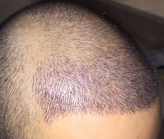 三月的鬼雨-植发术后第7天图片