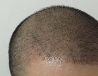 三月的鬼雨-植发术后第61天图片