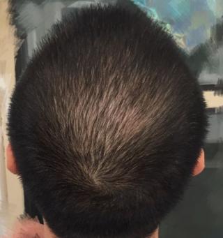 三月的鬼雨-植发术后第109天图片
