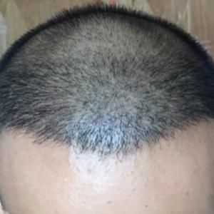 三月的鬼雨-植发术后第205天图片