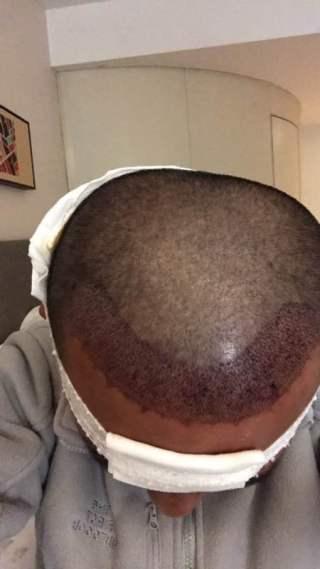 纵马天下-植发术后当天图片