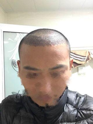 纵马天下-植发术后第4天图片