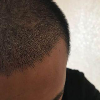 纵马天下-植发术后第15天图片