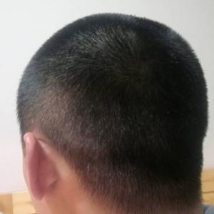 苦瓜老酒-植发术后第29天图片