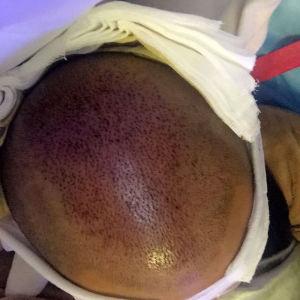 浅凝半夏-植发术后当天图片