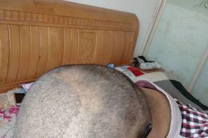 做完毛发移植后取发区有很多白点是什么情况