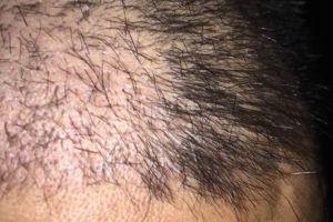 植发一个月了,种植的头发东倒西歪的