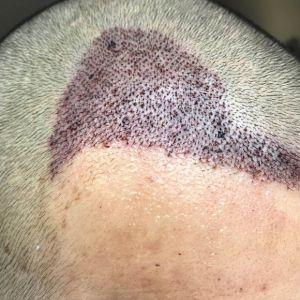 心奴-植发术后第2天图片