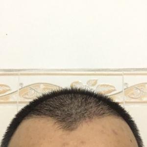 浪子天涯-植发术后第29天图片