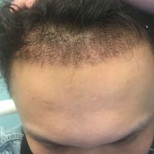 墨瞳殇-植发术后第14天图片