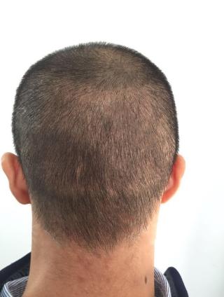 烟花冷-植发术后第14天图片