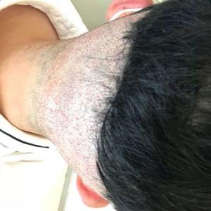 不信人间白头-植发术后当天图片