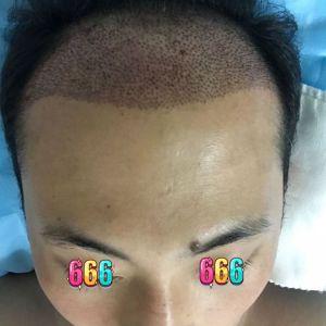 不信人间白头-植发术后第1天图片