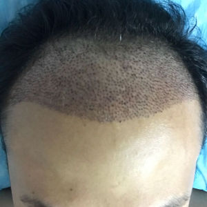 不信人间白头-植发术后第3天图片