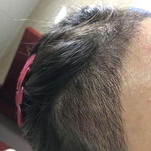 一抹旧时香-植发术后第19天图片