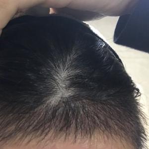 一抹旧时香-植发术后第71天图片