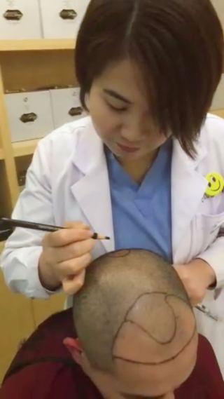 崔敏熙-植发术后当天图片
