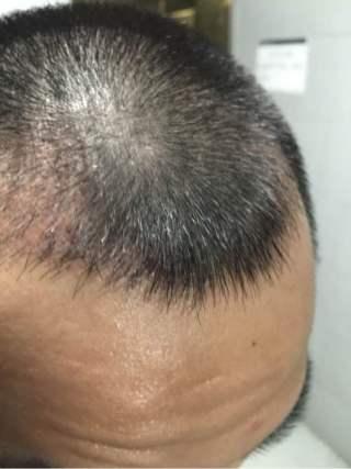 喜乐果-植发术后第27天图片