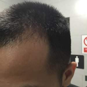 喜乐果-植发术后第45天图片