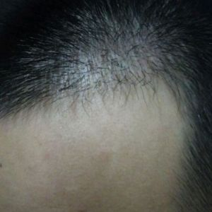 喜乐果-植发术后第126天图片