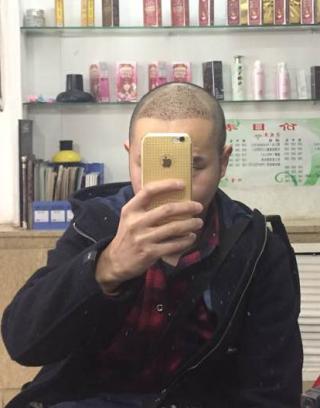 头发盘起时-植发术后第7天图片