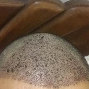 头发盘起时-植发术后第4天图片