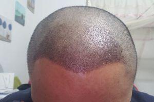 植发后取发区发痒,好难受,有什么办法缓解吗?
