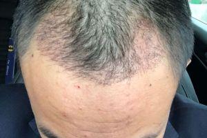 植发一个月了,后枕部取发区已经看不出取发痕迹了