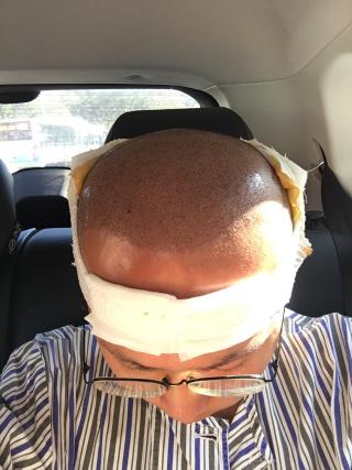 是一个故事-植发术后当天图片