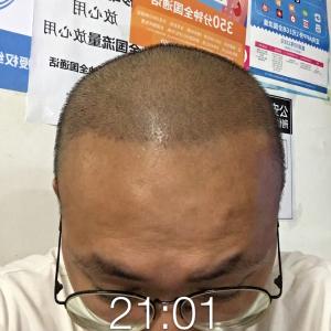 是一个故事-植发术后第482天图片