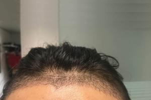 植发两周了,头发开始东倒西歪了应该是脱落期要到了