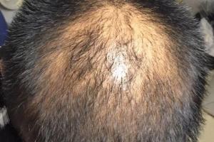 这个角度拍下来感觉头顶头发好稀少