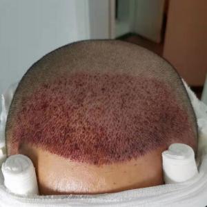 尓给的温柔-植发术后当天图片