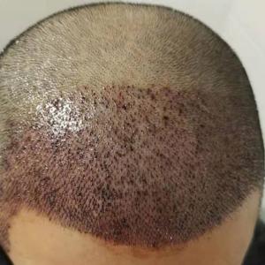 尓给的温柔-植发术后第1天图片
