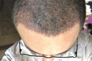 植发区头皮还是很红,什么时候才能恢复正常的颜色啊?