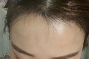 清理了血痂之后头皮屑现在也没有了,植发区也很干净