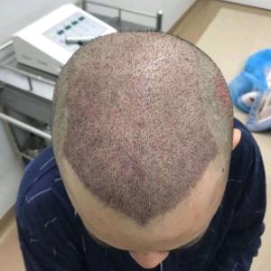 柳序生-植发术后当天图片