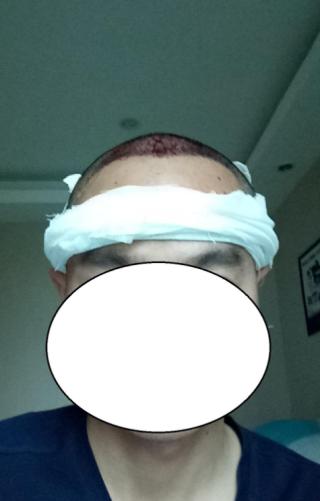 北幕南辞-植发术后当天图片
