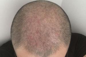 植发后的毛囊炎,百多邦和碘伏有用吗?
