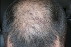 移植头发过后需要使用什么药物来保养吗?