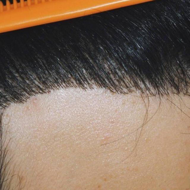 男性种植发际线术后效果图走一波!(来自用户 : 殇影 的植发效果分享)