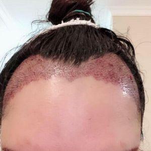雨露潋琹萧-植发术后当天图片