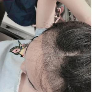 安于喜欢-植发术后第15天图片
