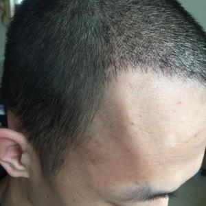 重归于好-植发术后第27天图片
